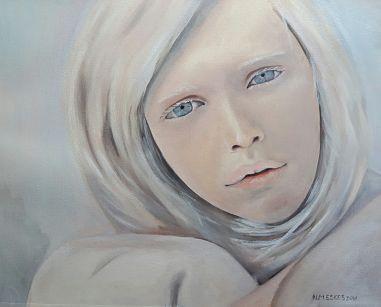 Afbeelding van Albino Girl